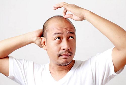 Dầu gội ngan rụng tóc và kích thích mọc tóc